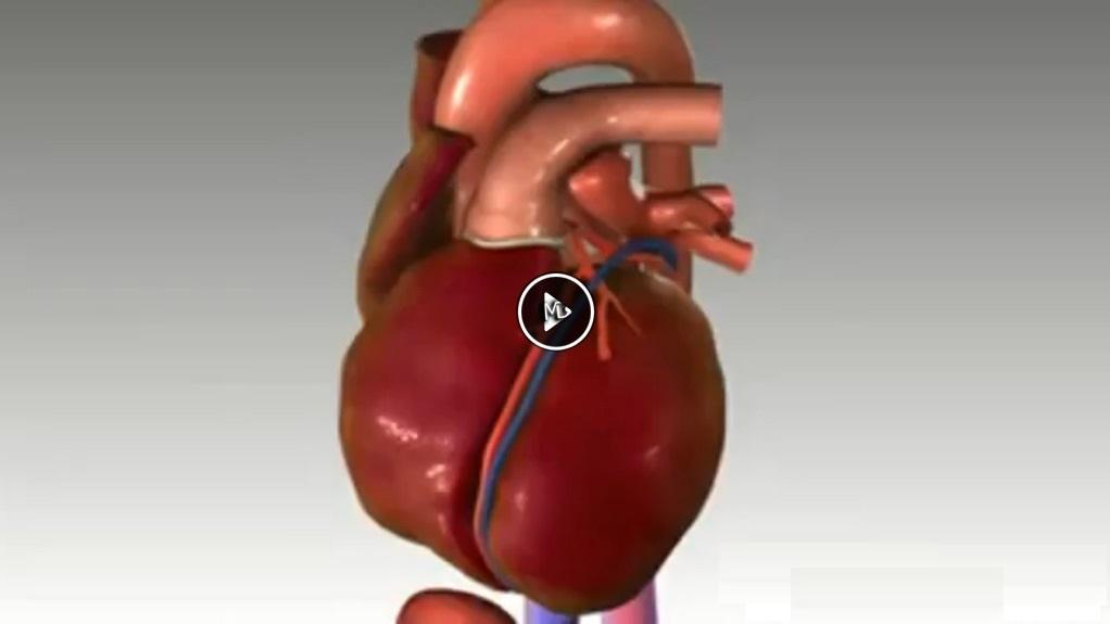 سکته قلبی1 دانلود کلیپ علمی سکته ی قلبی یا نارسایی قلبی